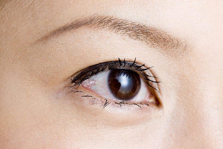 目の印象を左右する二重ライン